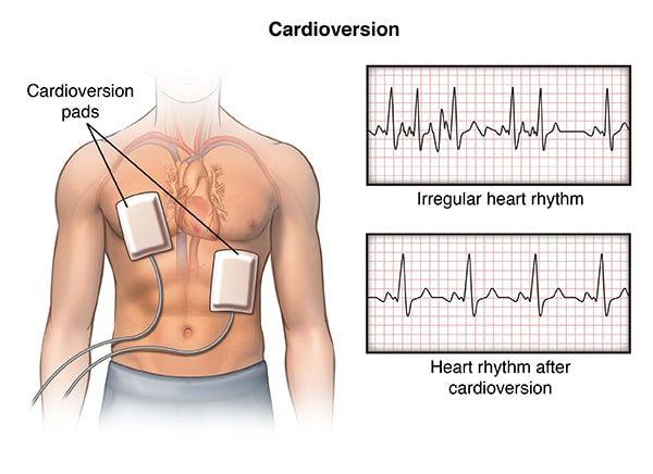 ¿Qué es una cardioversión? arritmia, fibrilación auricular