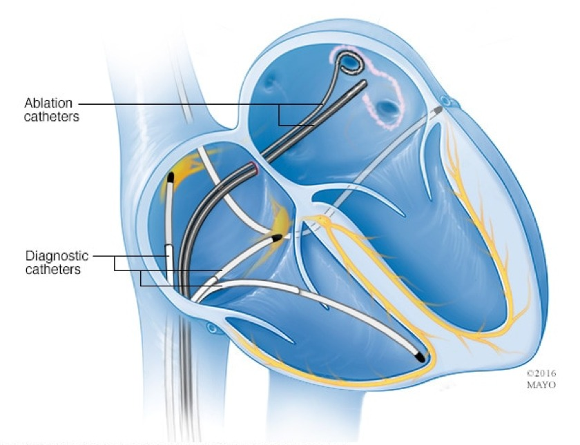 ¿Qué es una ablación cardíaca?